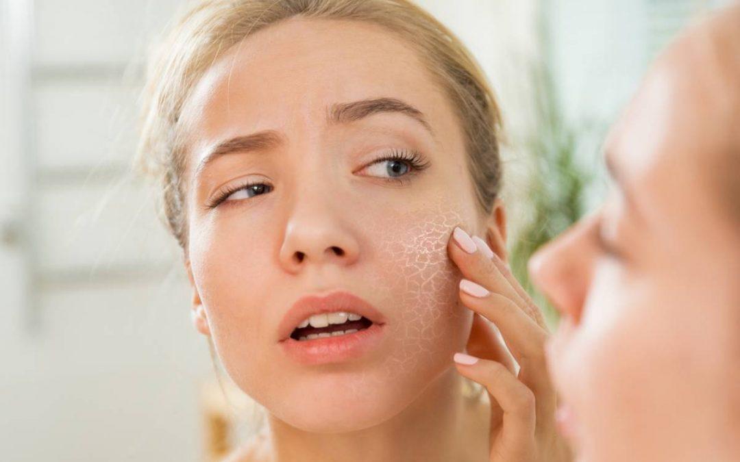 Peau très sèche, optez pour des cosmétiques plus sains !